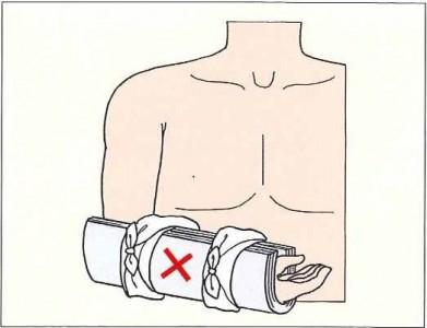 前腕部の固定イラスト