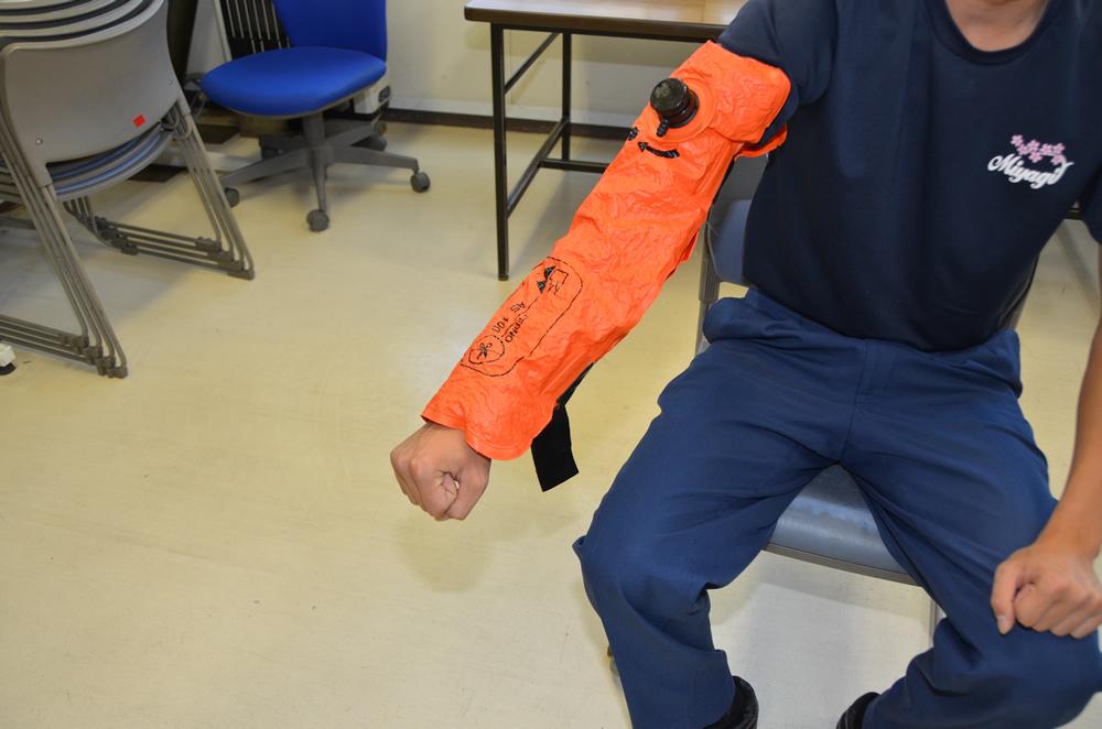 陰圧式固定器具を腕に巻き固定された状態の写真